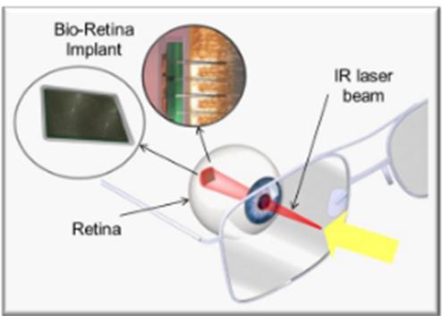 Nano Retina's Bio-Retina 2
